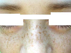 البقع البنية على الجلد النمش 13029668191.jpg