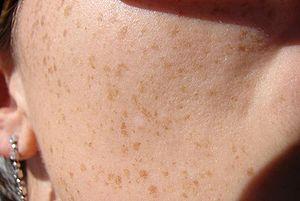 البقع البنية على الجلد النمش 13029668192.jpg